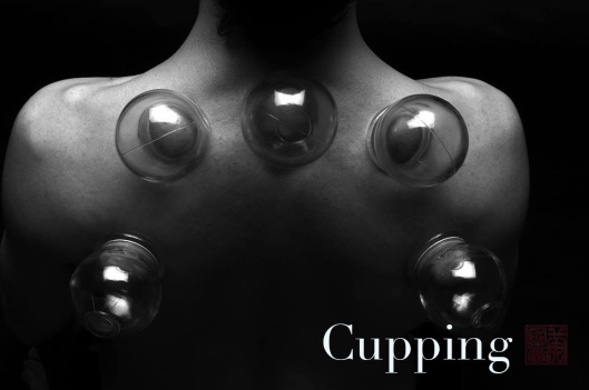cupping copy